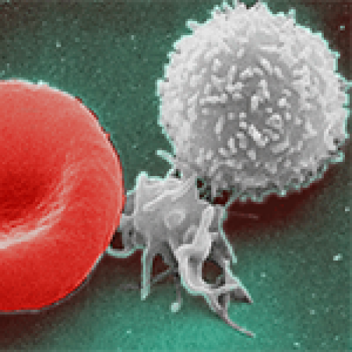 A Low White Blood Cell Count (Leukopenia)