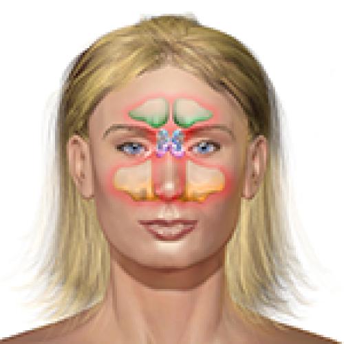 Sinus Infection (Sinusitis)