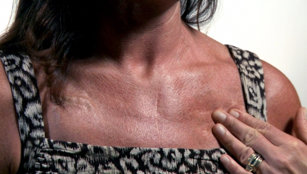 Embracing Your Scars: Heidi's Story