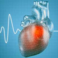 Heart Arrhythmia Series