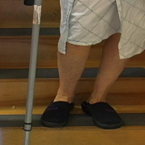 Delaying the Progression of Arthritis