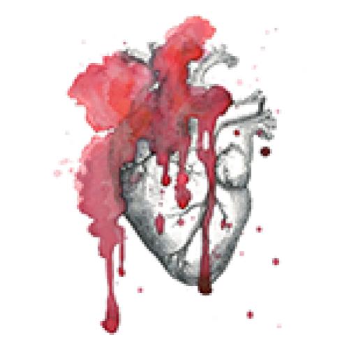 Paroxysmal Supraventricular Tachycardia (PSVT)